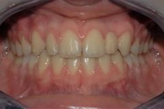 Arcate dentarie in occlusione. Vista frontale.