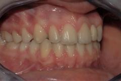 Arcate dentarie in occlusione. Vista laterale destra.