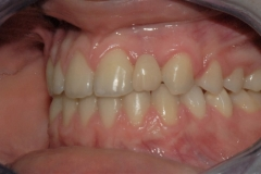 Arcate dentarie in occlusione. Vista laterale sinistra.
