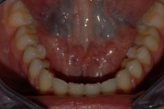 Arcata dentaria inferiore con reteiner.