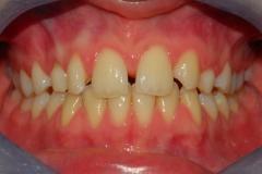 Arcate dentarie. Agenesia incisivo laterale. Vista frontale.