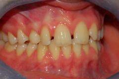 Arcate dentarie. Agenesia incisivo laterale. Vista destra.