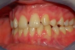 Arcate dentarie. Agenesia incisivo laterale. Vista sinistra.