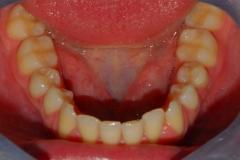 Arcata dentaria inferiore. visione occlusale.