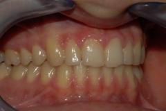 Arcate dentarie in occlusione. Visione destra