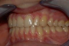 Arcate dentarie in occlusione. Visione sinistra