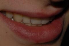 sorriso corretto dopo apparecchio ortodontico fisso