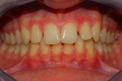 Malocclusione di prima classe: diastemi. Vista in occlusione frontale