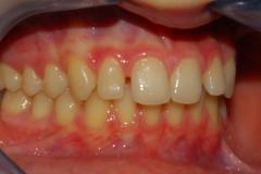 Malocclusione di prima classe: diastemi. Vista in occlusione destra