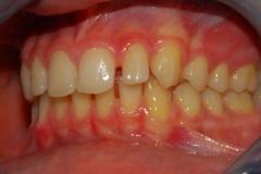 Malocclusione di prima classe: diastemi. Vista in occlusione sinistra