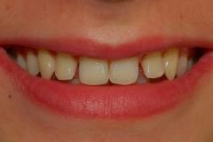 Sorriso prima della terapia ortodontica