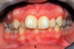 Arcate dentarie in occlusione prima della cura. Vista frontale.