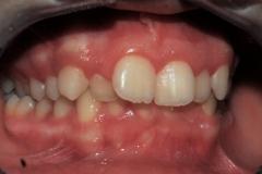 Arcate dentarie in occlusione prima della cura. Vista laterale destra.
