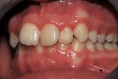 Arcate dentarie in occlusione prima della cura. Vista laterale sinistra.
