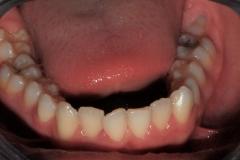 Arcata dentaria inferiore. Vista occlusale.
