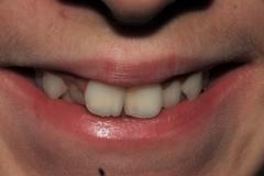 Sorriso denti storti