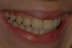 Sorriso perfetto estetica dentale
