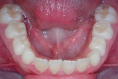 Arcata dentaria inferiore. visione occlusale