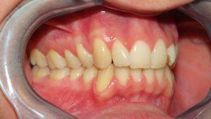 Classe molare e canina neutra a destra, affollamento incisivi laterali superiori