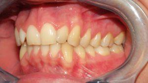 Prima classe dentale a sinistra, affollamento incisivi laterali superiori