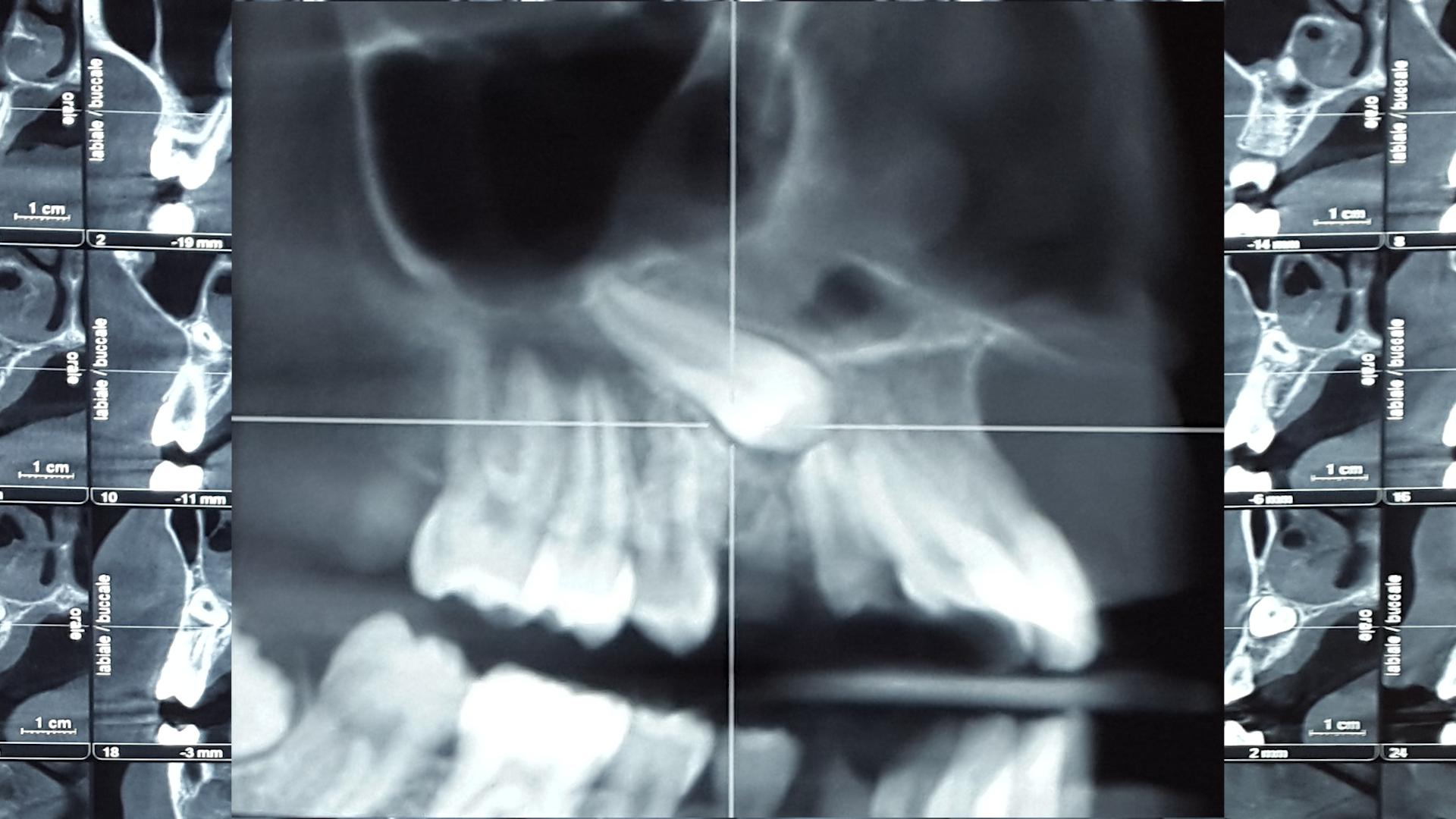 Immagine radiografica di canino incluso in Cone Beam