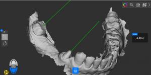Impronta dentale digitale due monconi protesici